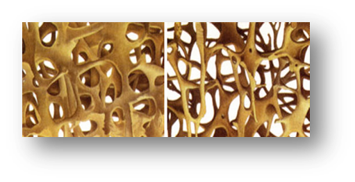 Tissus osseux Sevamag Velay Scop